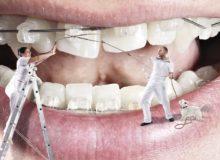 Promotie/Aparat ortodontic